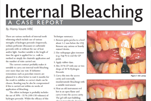 Internal Bleaching By Manny Vasant