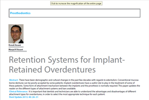 Retention Systems for Implant-retained overdentures
